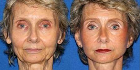 bio face lift facial