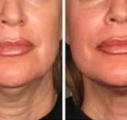 HIFU Ultherapy Facial