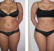 Fat & Cellulite Treatments