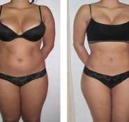 Fat & Cellulite Treatments