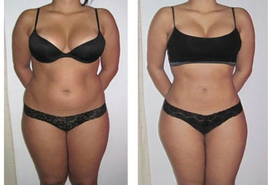 Fat Reduction Cellulite Treatments
