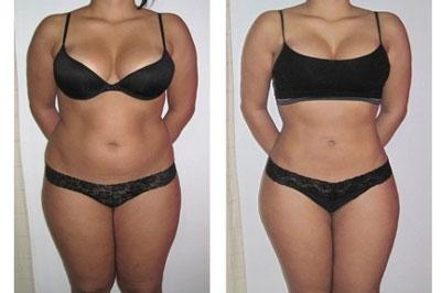 Fat Reduction Cellulite Treatments