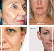 RF Face Lift Facial