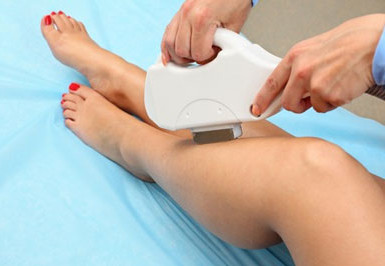 IPL -Hair Removal