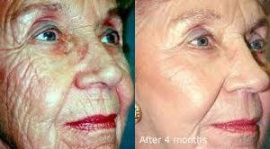 Deep Wrinkle RF & Skin Needling Facial voucher