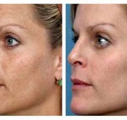 IPL Pigmentation Treatments