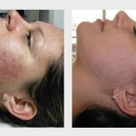 IPL Acne Therapy