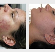 IPL Skin Treatments