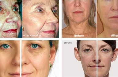 Rf face lift facial
