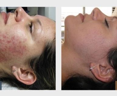 Acne or Blemish Facial 1 hr $170
