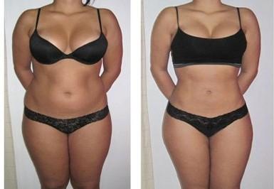 fat & cellulite, stretch mark treatments noosa